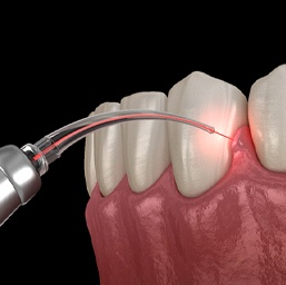 Periodontal laser therapy