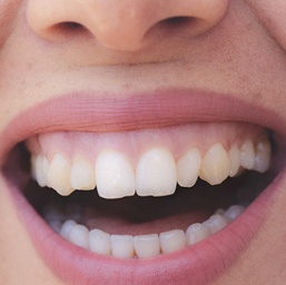 Beautiful smile with healthy gums